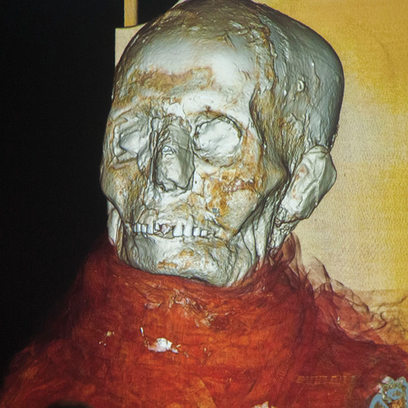 CT scans of Mass General mummy skull with linens showing as orange